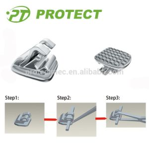 Orthodontic Self Ligating Lingual Brackets with CE