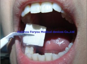 Bleeding Control Medication Disposable Hemostat Aluminium Absorbent Medical Absorbable Hemostatic Gauze pictures & photos