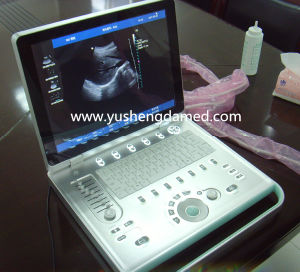Ysd518 Ce Approved Laptop Medical Ultrasonic Diagnostic Equipment pictures & photos