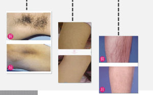 Best Germany Bars 808nm Diode Laser Hair Removal Machine pictures & photos