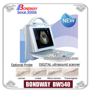 Digital Ultrasound Scanner (BW540)
