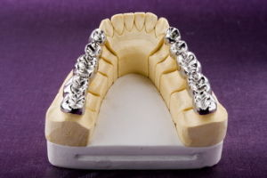 Full Metal Crown Made in China Dental Lab pictures & photos
