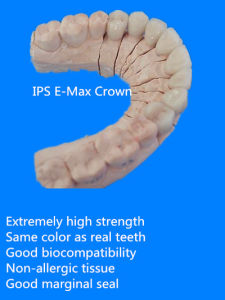 Dental IPS E. Max Crown Made in China Dental Lab pictures & photos