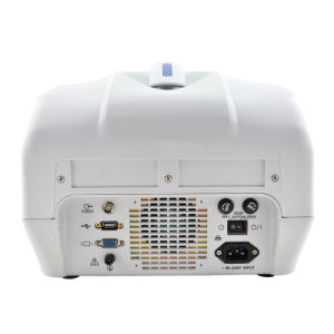 10 Inch Portable Ultrasound Machine/Scanner with 3.5MHz Convex Probe pictures & photos