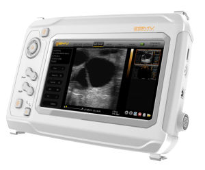Portable Medical Instrument Ultrasound Scanner for Hospital (SonoMaxx 300) pictures & photos