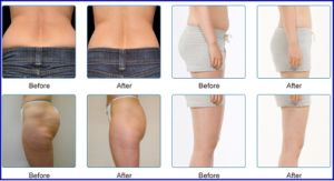 Cool Tech Fat Freezing Liposuction Body Contouring Cryolipolysis Coolsculpting Machine pictures & photos