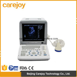 Factory Price 12-Inch LCD Portable Ultrasound Scanner (RUS-9000B) -Fanny pictures & photos