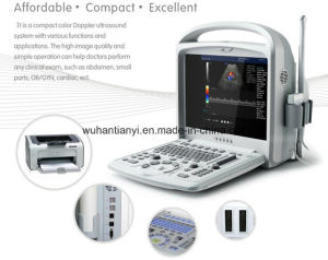 15 Inch Cheapest Color Doppler Ultrasound Scanner pictures & photos
