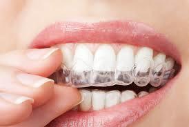 Teeth Night Guard From China Dental Laboratory