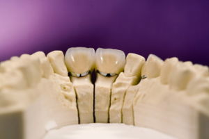 Denture Porcelain Fused to Metal Crowns Customized pictures & photos