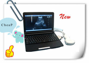 Full Digital Laptop Ultrasound Scanner/Ultrasound Machine (RUS-9000F) - Martin pictures & photos