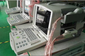 CE ISO Approved Full Digital Ultrasound Scanner YSD1300 pictures & photos