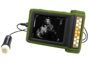Full Digital Mechanical Sector Ultrasound Diagnostic Instrument (Am-Msu2) pictures & photos