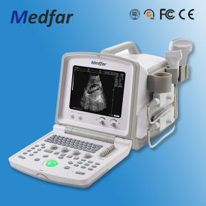 Portable Black&White Ultrasound MFC380 pictures & photos
