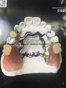 CAD/Cam Solid Titanium Metal Framework Denture From China Dental Lab pictures & photos
