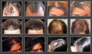 Hair Building Fibers Bulk Hair Fiber Refill Packs 1kg pictures & photos