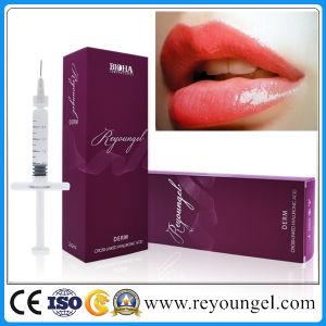 Hot Sales Hyaluronic Acid Ha Facial Dermal Filler pictures & photos