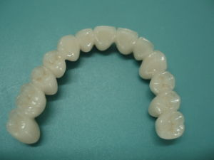 Dental Titanium Alloy Porcelain Crown Could Customized pictures & photos
