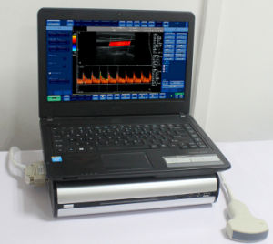 2017 New Portable Color Doppler Ultrasound System pictures & photos