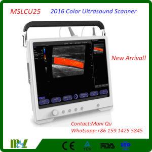 2016 Full Touchscreen Color Digital Ultrasound Scanner (MSLCU25)