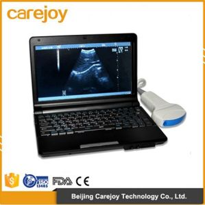 10 Inch Laptop Ultrasound Machine Rus-9000f with 3.5MHz Convex Probe Battery with Ce&ISO Certification-Maggie pictures & photos