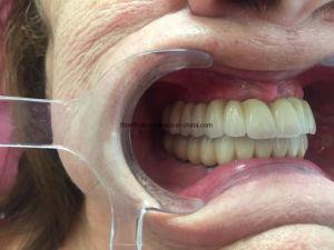Dental Metal Ceramic Screwed Implant Bridge pictures & photos