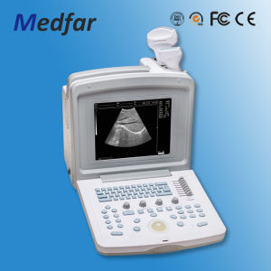 Portable Black&White Ultrasound MFC180 pictures & photos