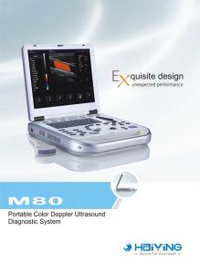 Laptop Color Doppler Ultrasound Scanner pictures & photos