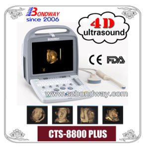 4D Ultrasound Scanner with CE FDA Mark Made-in-China Product