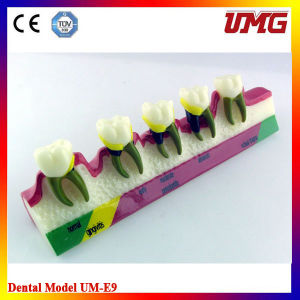 Education Equipment Periodontal Diseases Demonstration Model pictures & photos