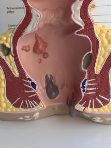 Medical Teaching Anatomical Human Rectum Model (R100209) pictures & photos