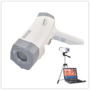 New Portable Digital Electronic Colposcope with CCD Sony Camera 800, 000 Pixels with Analysis Software Rcs-400 Model Manufacture -Maggie pictures & photos