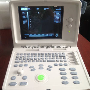 Full Digital B/W Portable Ultrasound Scanner Ce Approved PC Based pictures & photos