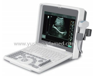 Medical Used Equipment Portable Ultrasound Scanner System pictures & photos
