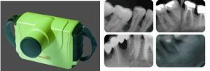 Hot Sale Portable Digital Dental X-ray Unit Machine Blx-9/Dental Product pictures & photos