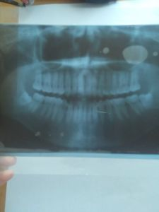 Panoramic Dental Film X-ray Equipment pictures & photos
