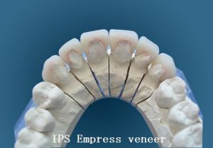 IPS Emax Onlay From China Dental Lab pictures & photos