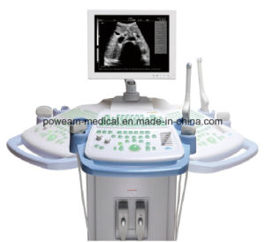 Digital Ultrasound Scanner with Trolley (WHYF40) pictures & photos