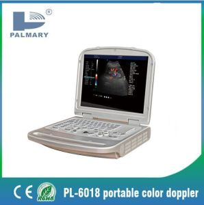 Laptop Color Doppler Pl-6018L