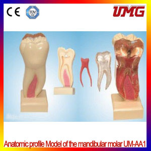 China Dental Supplies Anatomic Profile Model of The Mandibular Molar pictures & photos
