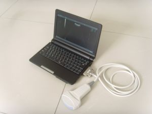 Wholesale Price Laptop Portable Ultrasound Machine pictures & photos