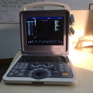 Hand-Carried Color Doppler System Ultrasound (HUC-300) pictures & photos