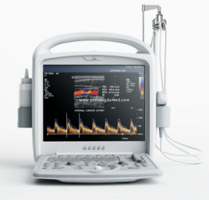 CE Medical Equipment 3D 4D Hand-Held Portable Color Doppler Ultrasound pictures & photos