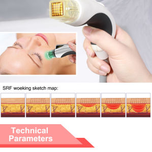 Magical Effect Cryolipolysis Fractional RF Microneedle Beauty Machine (Mr18-2s/CE) pictures & photos