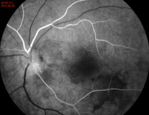 Medical Ffa Ophthalmic Fundus Camera pictures & photos