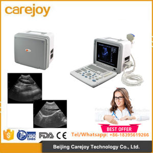 Portable Ultrasound Scanner Ultrasonic Machine with Convex Probe Transvaginal Micro-Convex Rectal Probe Optional Video Printer-Candice pictures & photos