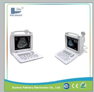 Cheapest Portable Ultrasound Machine and Pregnancy Ultrasound Scanner