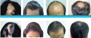 Herbal Hair Therapy Laser pictures & photos