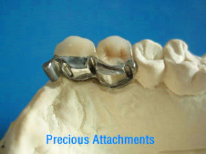 Vitallium Casting Framework with Precious Attachments Made in China Dental Lab pictures & photos