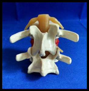Enlarge Demonstration Lumbar Disc Herniation Model Vertebral Simulator pictures & photos